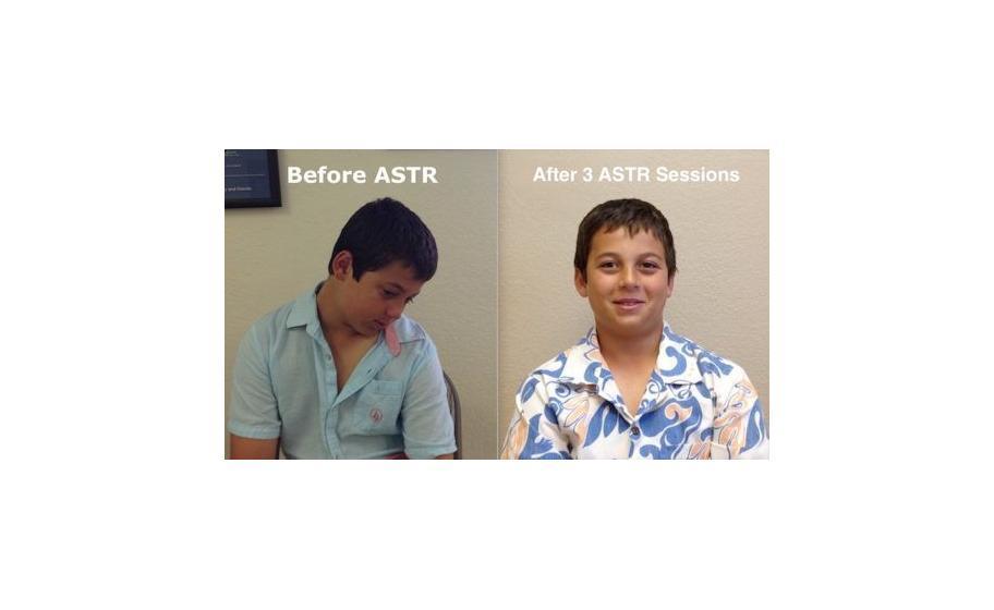 ASTR-Soft-Tissue-Release3