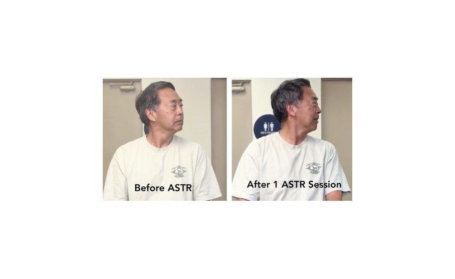 ASTR-advanced-scar-tissue-release