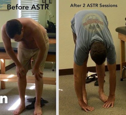 ASTR-advanced-soft-tissue-release