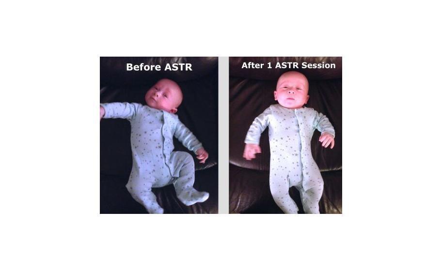 Myofascial-Release-ASTR